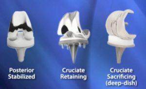 knee prosthesis types