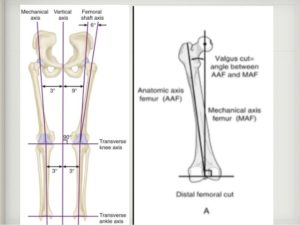 Mechanical axis of the knee joint