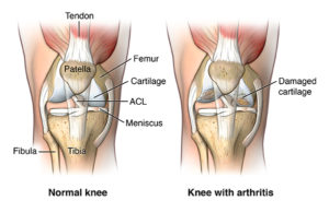 Anterior view of knee joint comparing normal vs. damaged cartilage; AMuscsk_20140311_v0_001; SOURCE: ortho_tot-knee-repla-arth_anat.ai