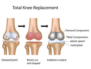 total knee replacement operation