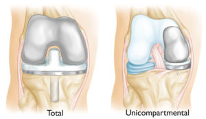 Unicompartmental and tricompartmental knee prosthesis